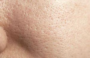 مراقبت از پوست چرب